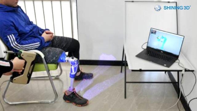 「医療活用」3Dスキャンで義足のリバースエンジニアリング
