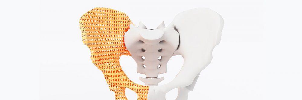 【医療業界】整形外科での応用