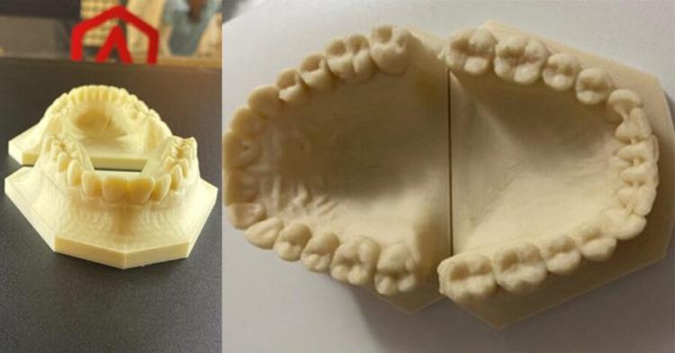 Raise3Dで歯科矯正装置を製作し効率化を達成した